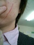 飼い猫に顔を掻かれる
